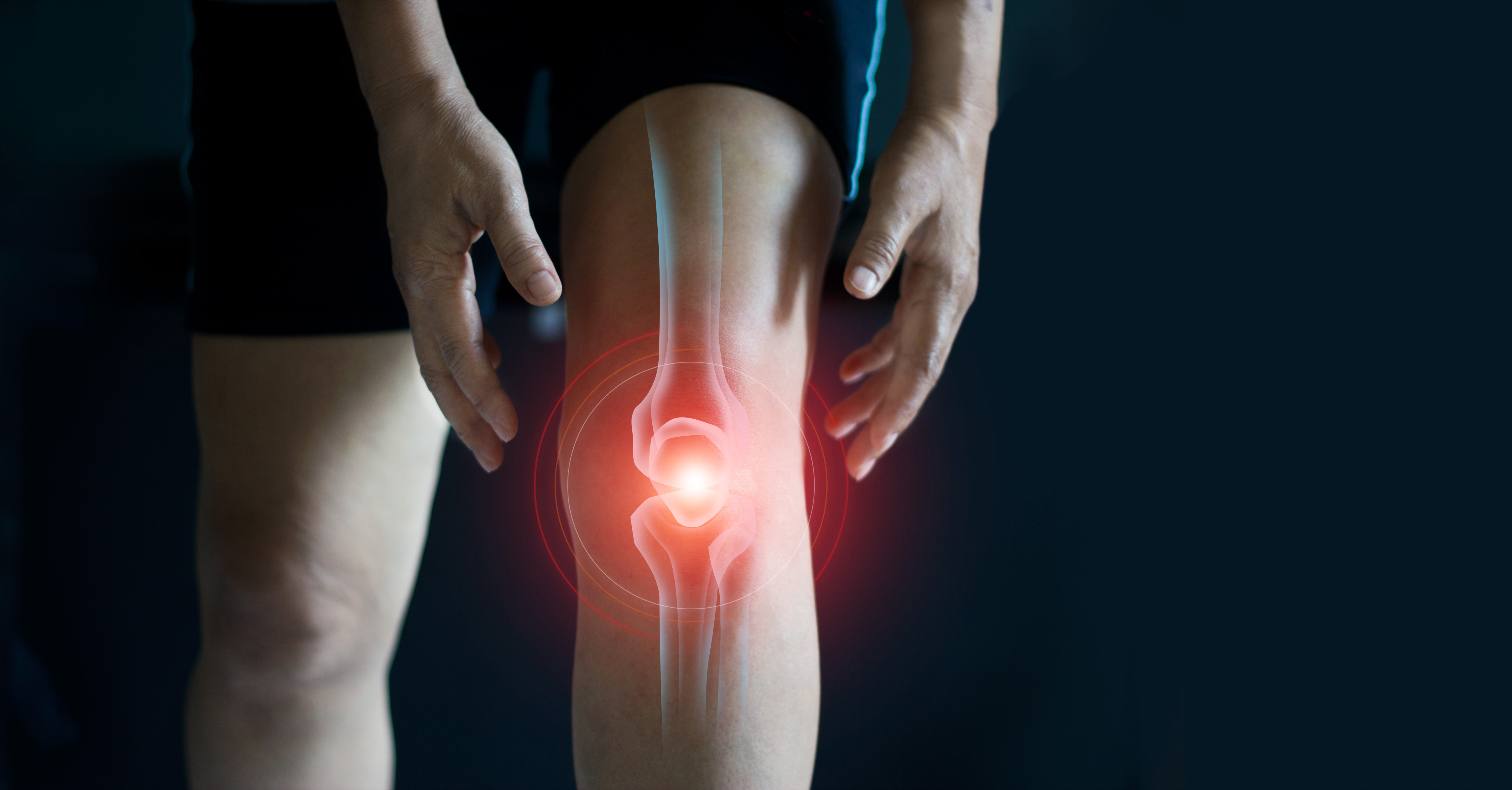 Manage Arthritis Pain with Physical Therapy